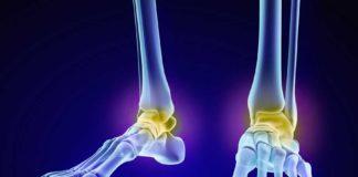 Aceite de Cannabis para la Artrosis - Aceite de Marihuana para Artrosis
