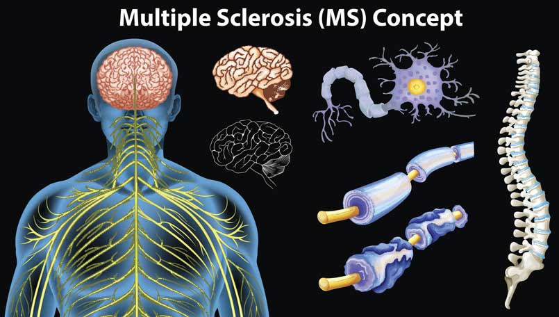 Esclerosis Múltiple y la Marihuana