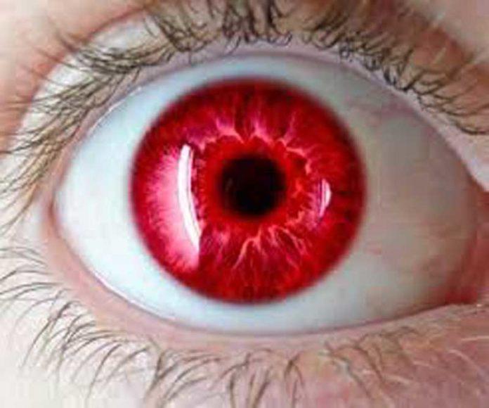 Ojos Rojos Marihuana - Cómo Eliminar el Color Rojo de los Ojos