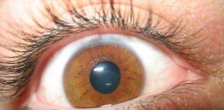 El CBD mejora el Glaucoma - EL CBD mejora la presión Ocular