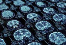 Marihuana Alzheimer - Marihuana puede ayudar en el Alzheimer