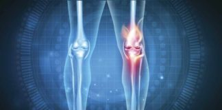 Beneficios Marihuana Artrosis - Marihuana Mejora la Artrosis